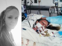 Linda Selin när hon låg i respirator efter att ha fått svininfluensa.
