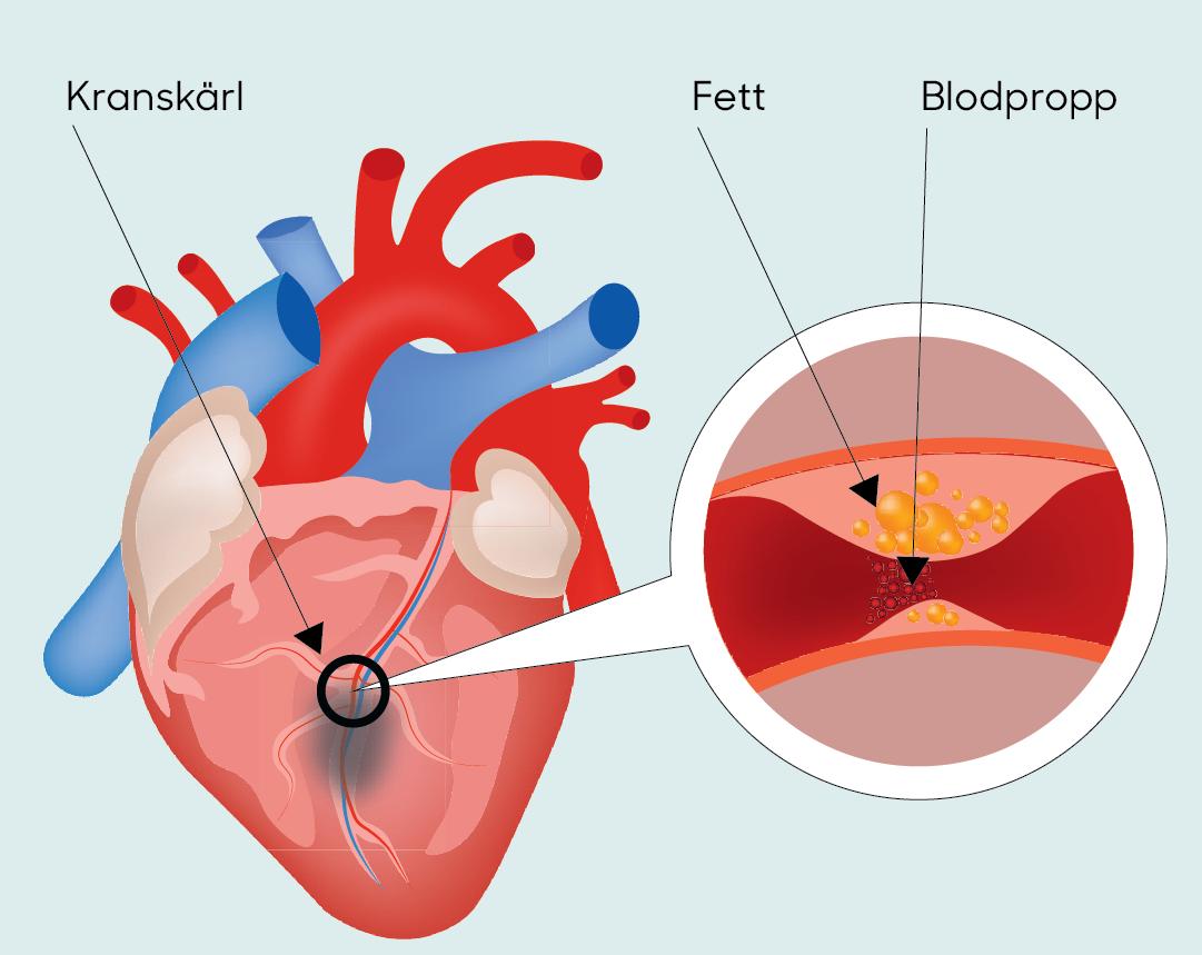 Bild av ett hjärta med en förstoring av ett kranskärl med inlagrat fett som orsakar en blodpropp.