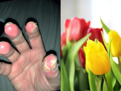 Maria fick frätskador på fingertopparna.