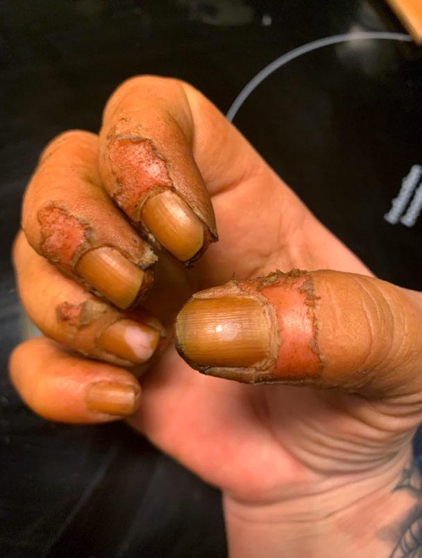 Skadorna på Marias fingrar.